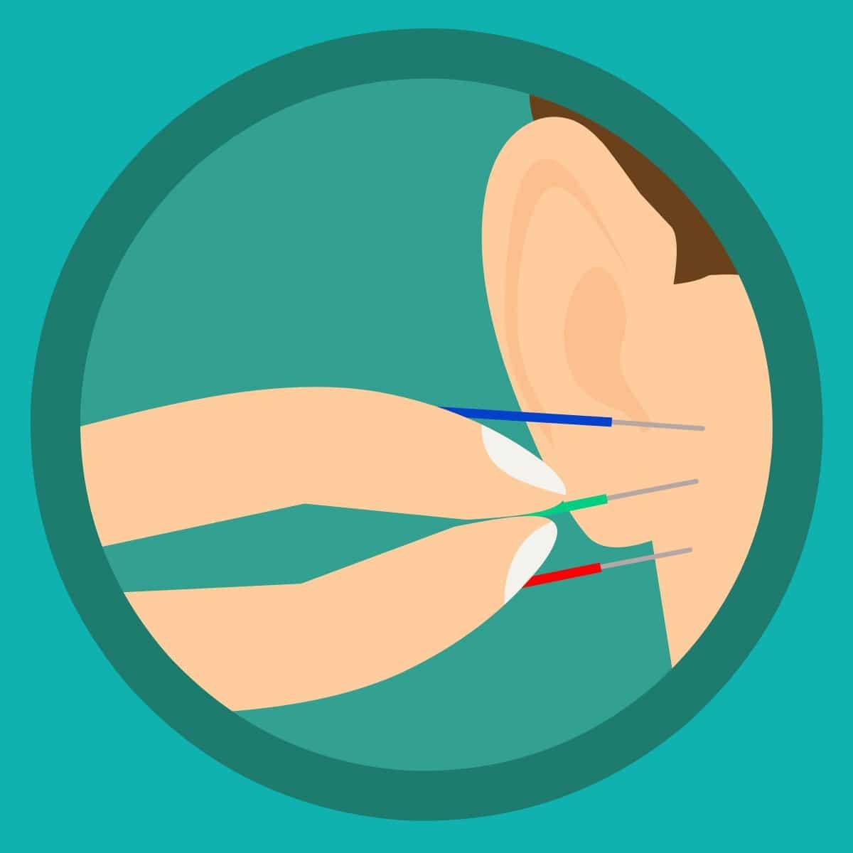 Afvallen acupunctuur